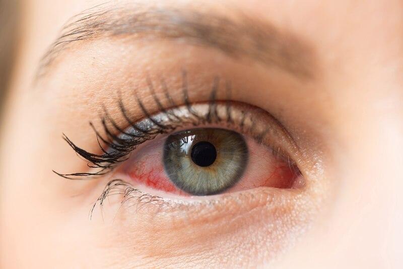 Dry Eye Clinic.